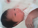 不妊鍼灸治療で授かった赤ちゃん